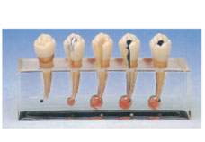 Clinical model of Endodontics