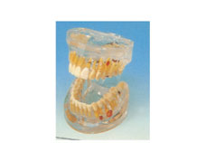 Transparent Dental Pathology Model